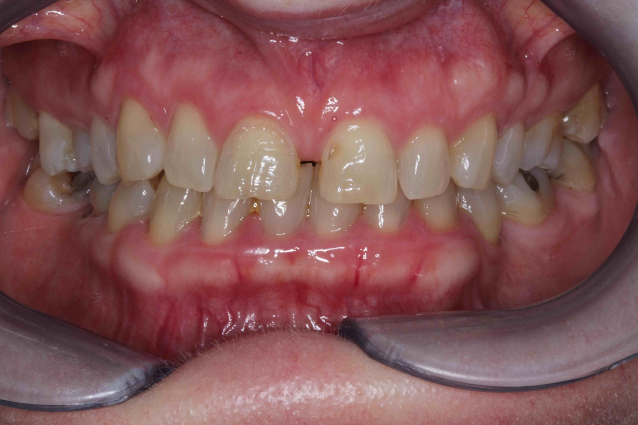 Short and worn Front Teeth Before Bonding Pictures