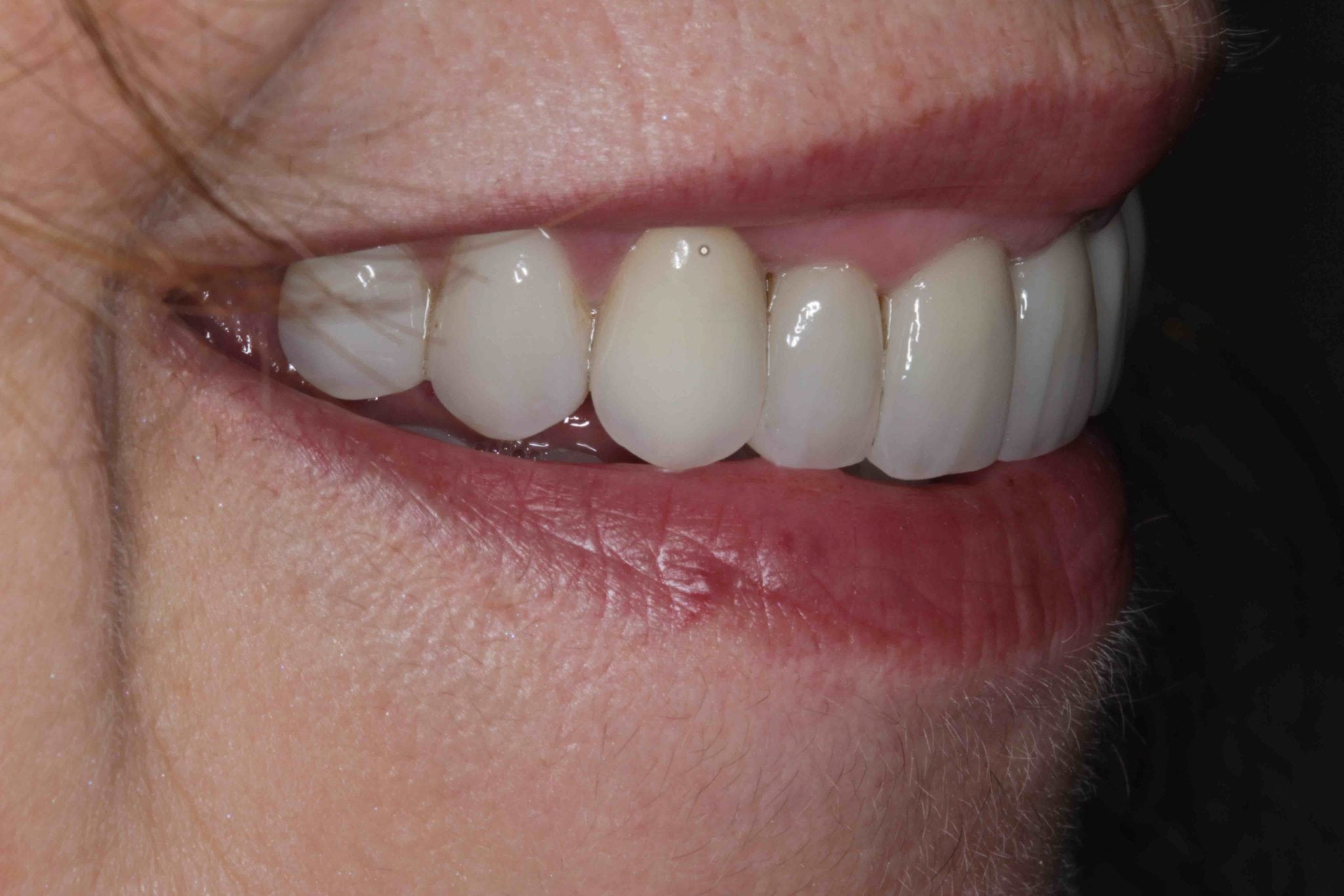 smile makeover after pictures