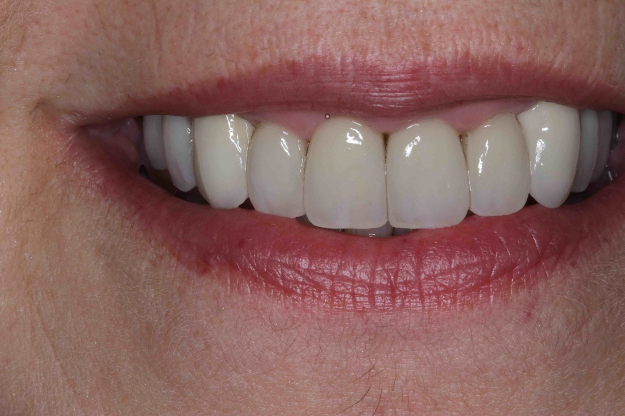 Smile MakeOver Before After with Porcelain Crowns