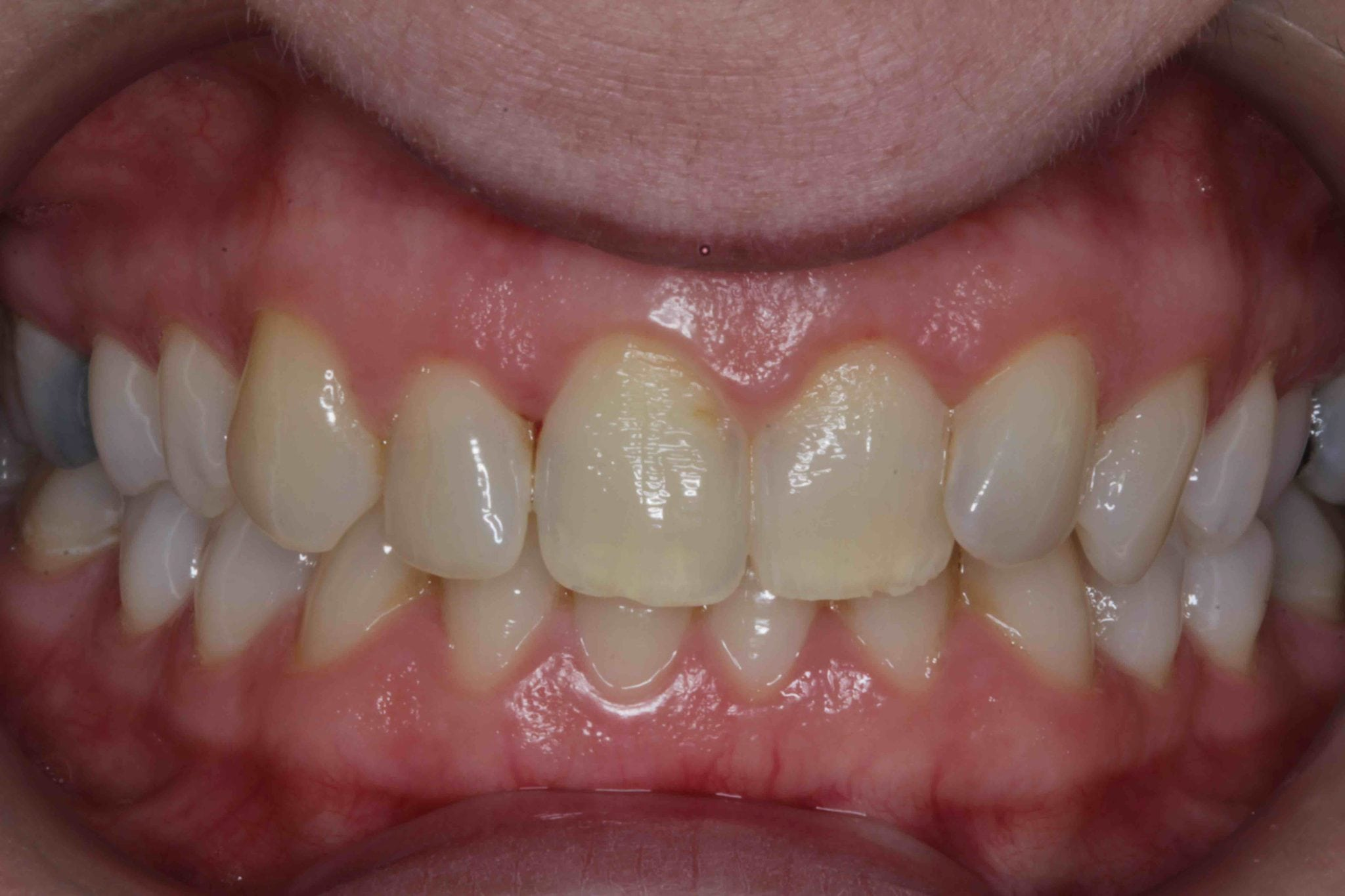 Veneers before and after treatment of front teeth