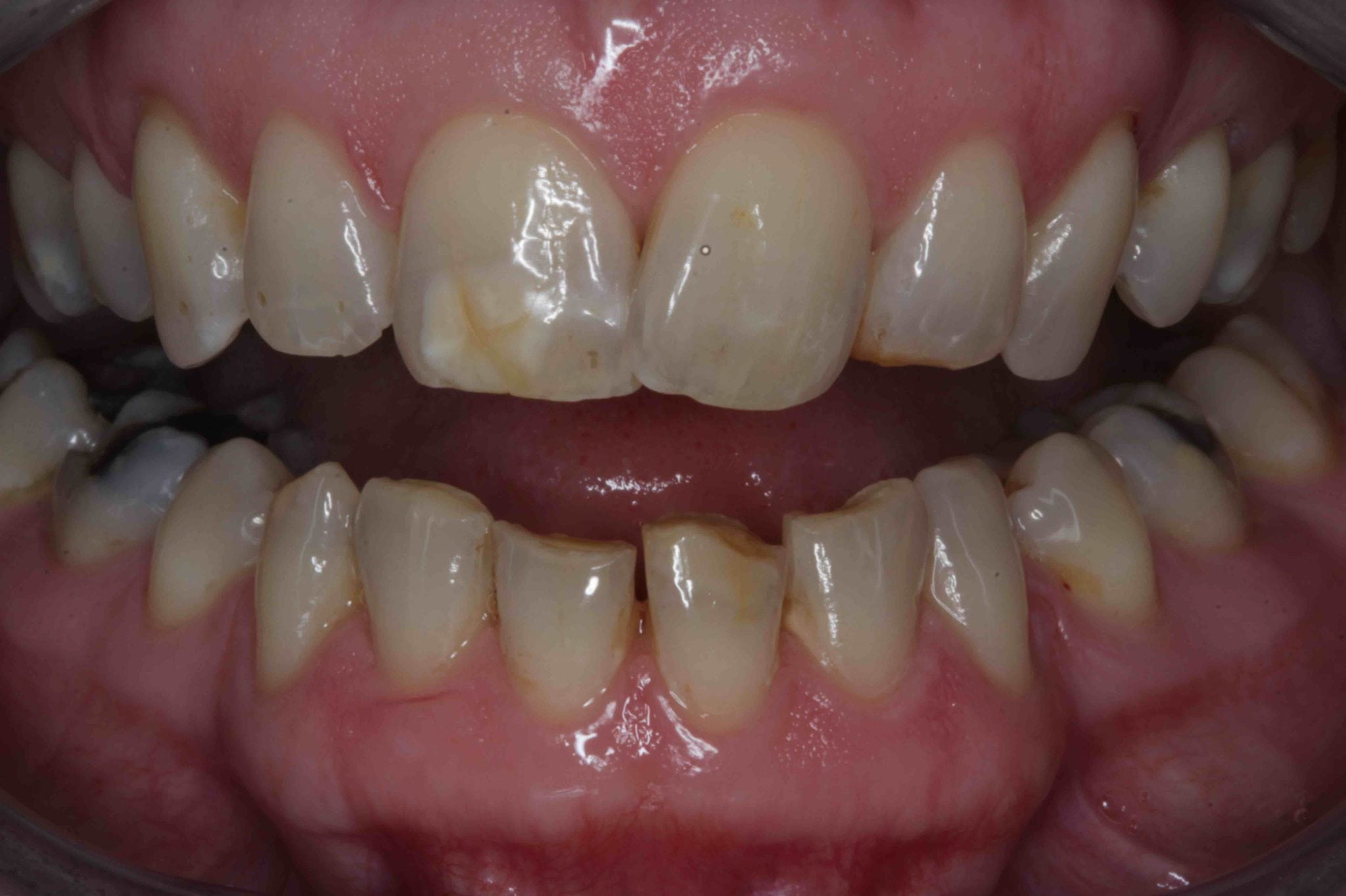 Tooth Bonding for severe staining and discolouration