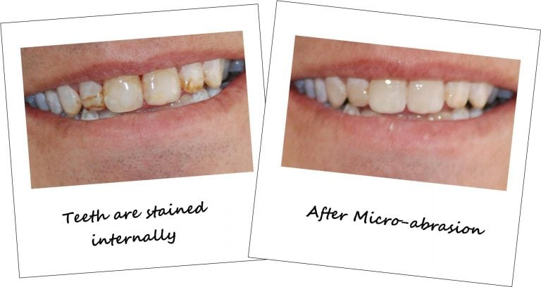 Cosmetic Dentistry Preston - Before and after Pictures