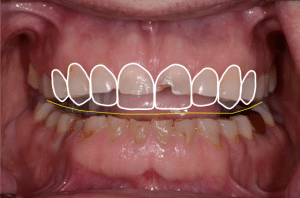 tooth wear treatment