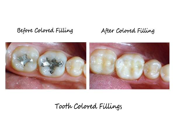 tooth coloured fillings before and after pictures