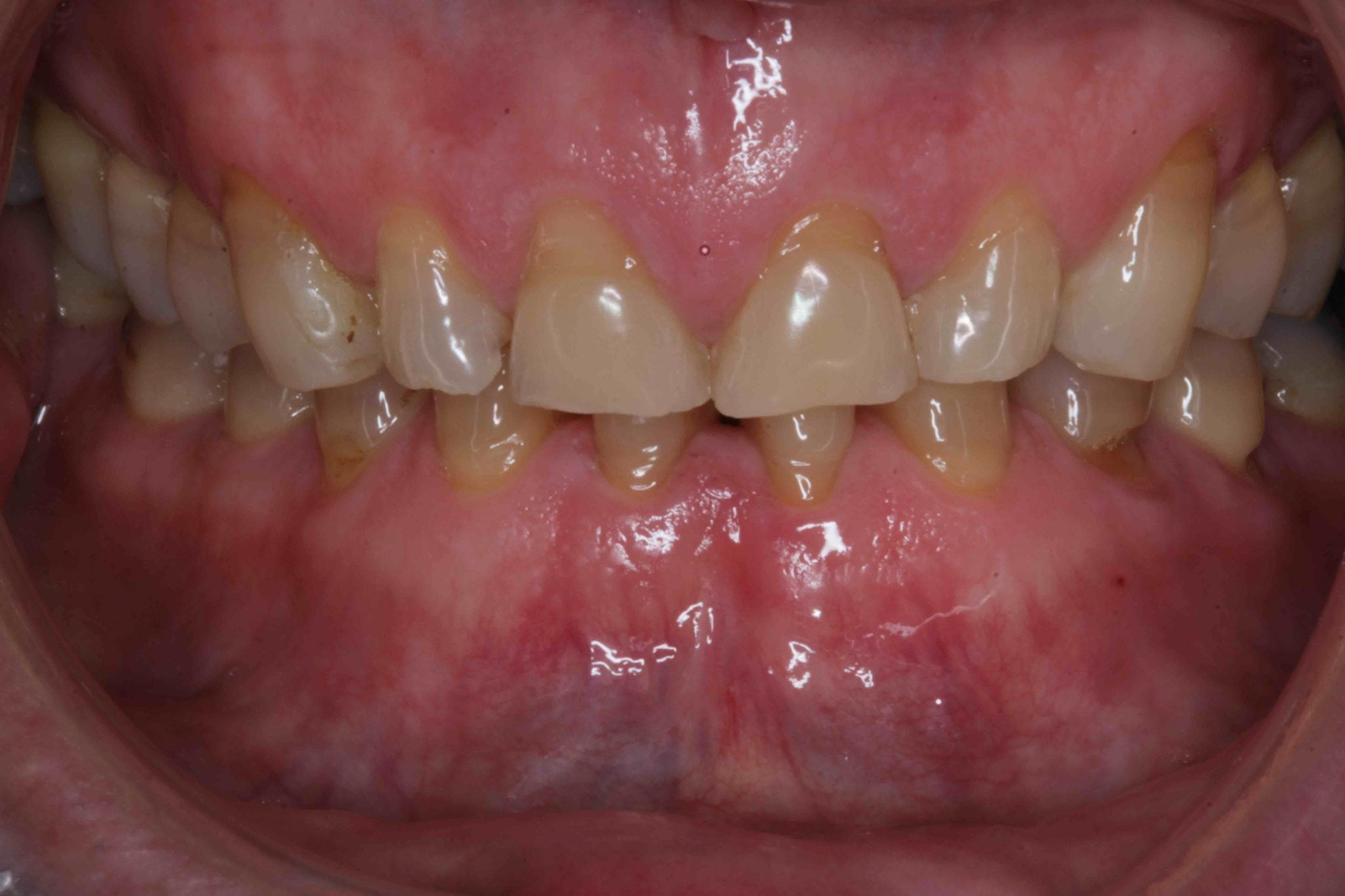 Worn teeth smile makeover before and after pictures
