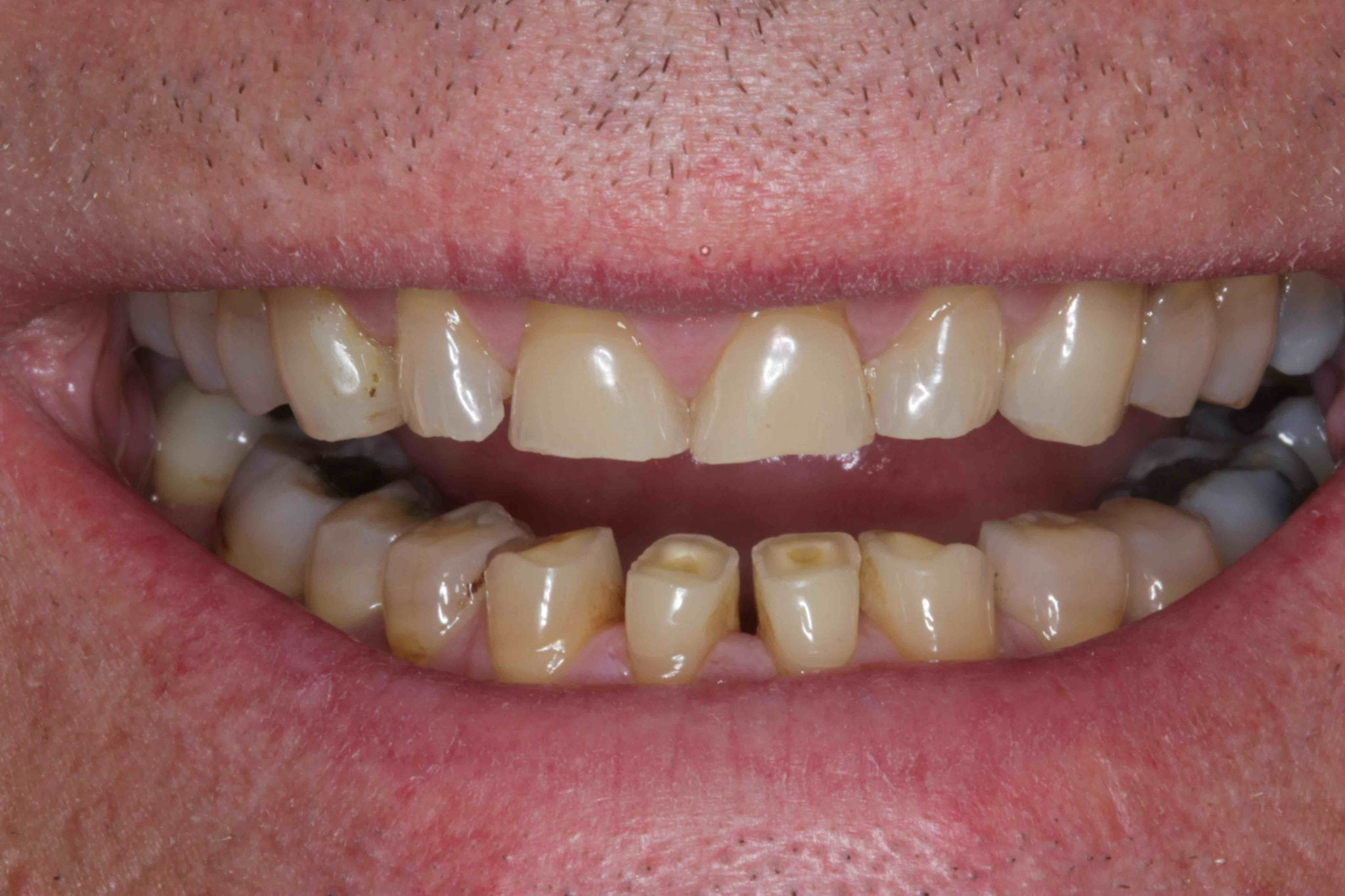 mini smile makeover eroded teeth before and after photod