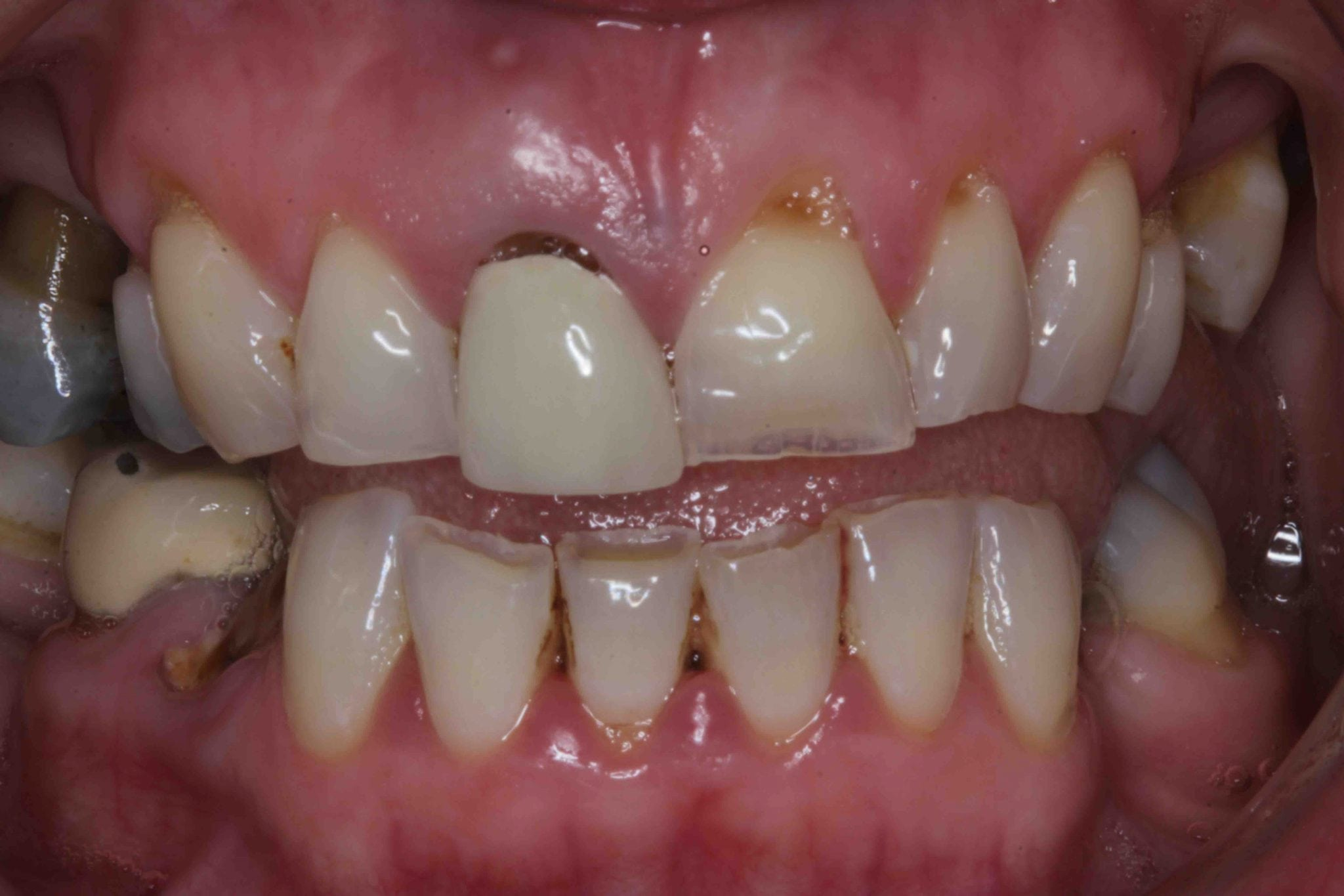fractured tooth dental implant treatment photos