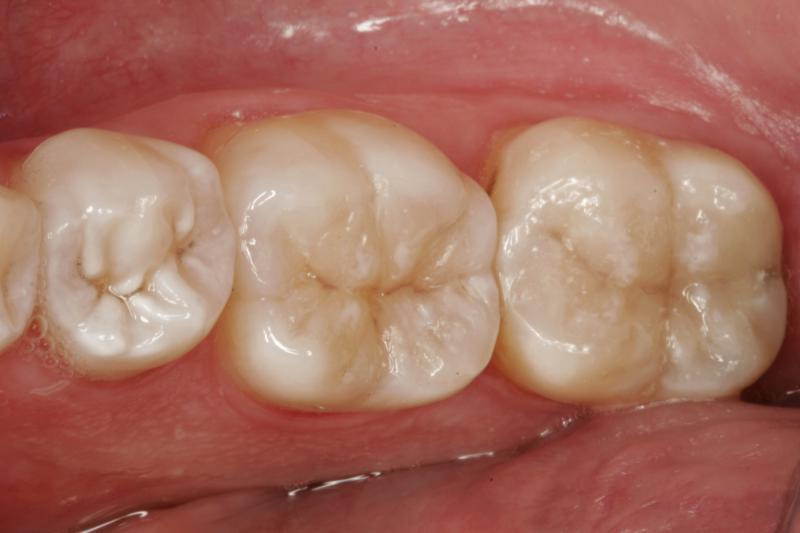 white fillings replacement before and after photos