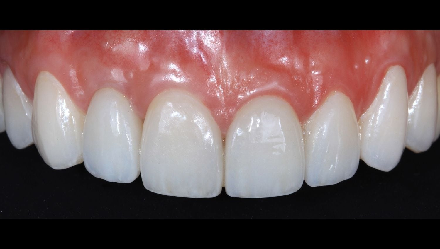 Dental Implants before and after photos - broken front tooth