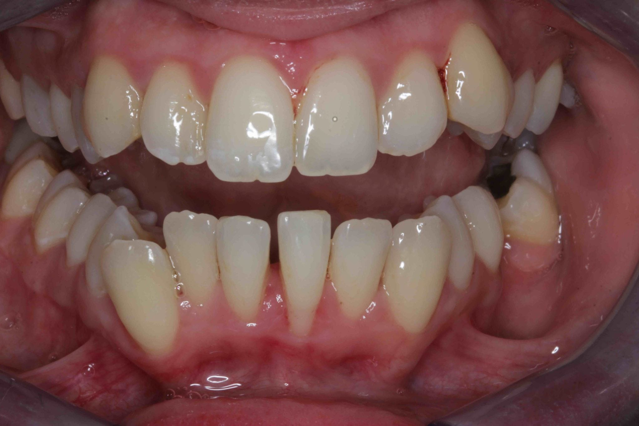 Braces and Porcelain veneers before treatment photo