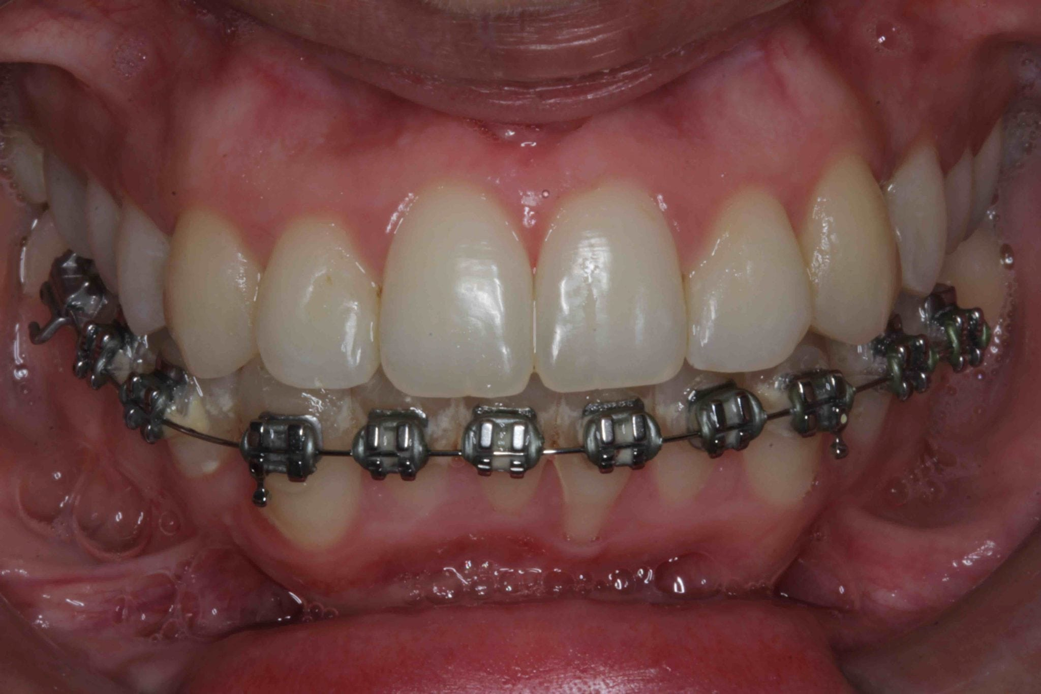 Crooked teeth correction with braces before veneers pictures