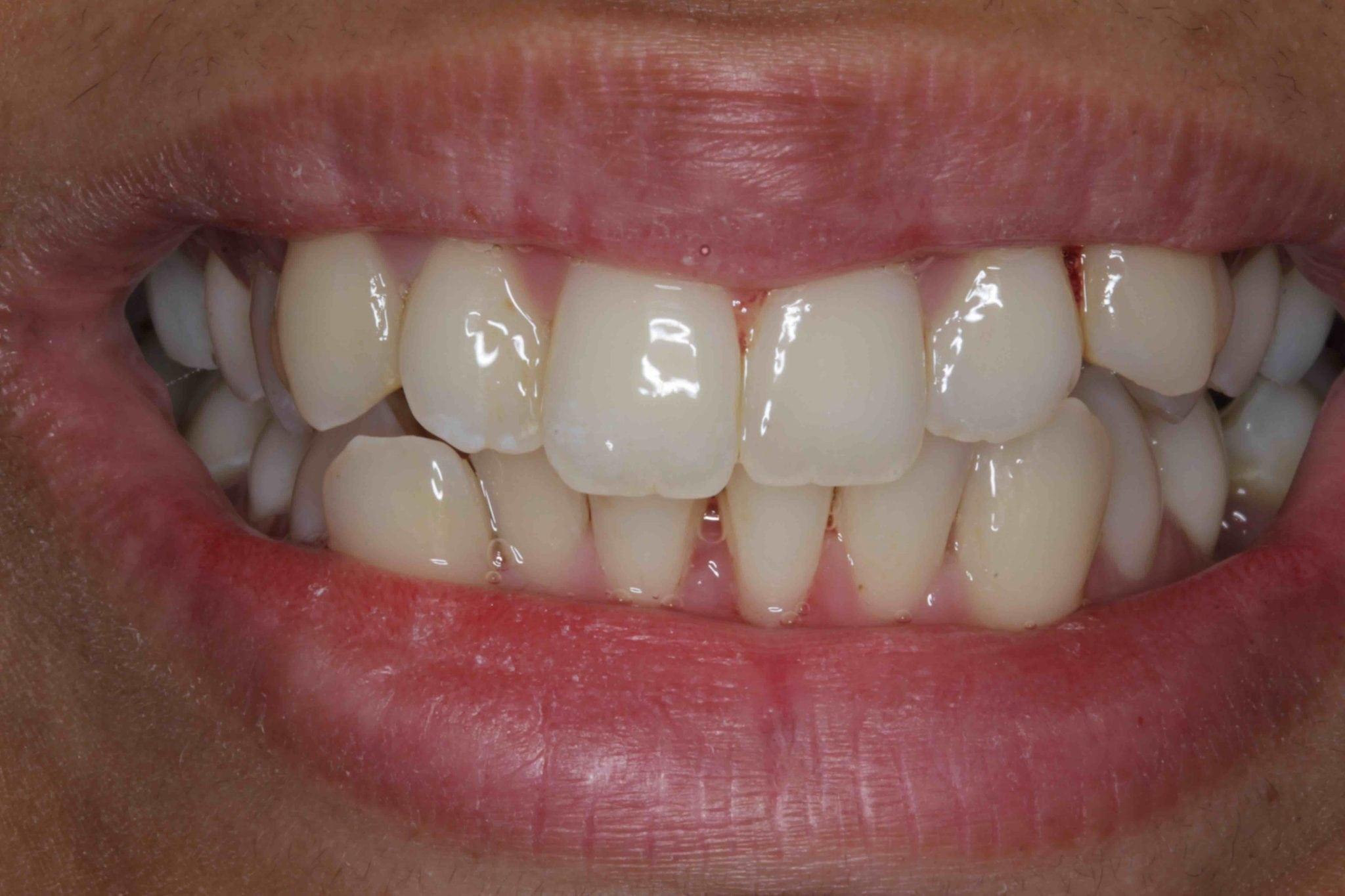 crooked teeth treatment with porcelain veneers before after