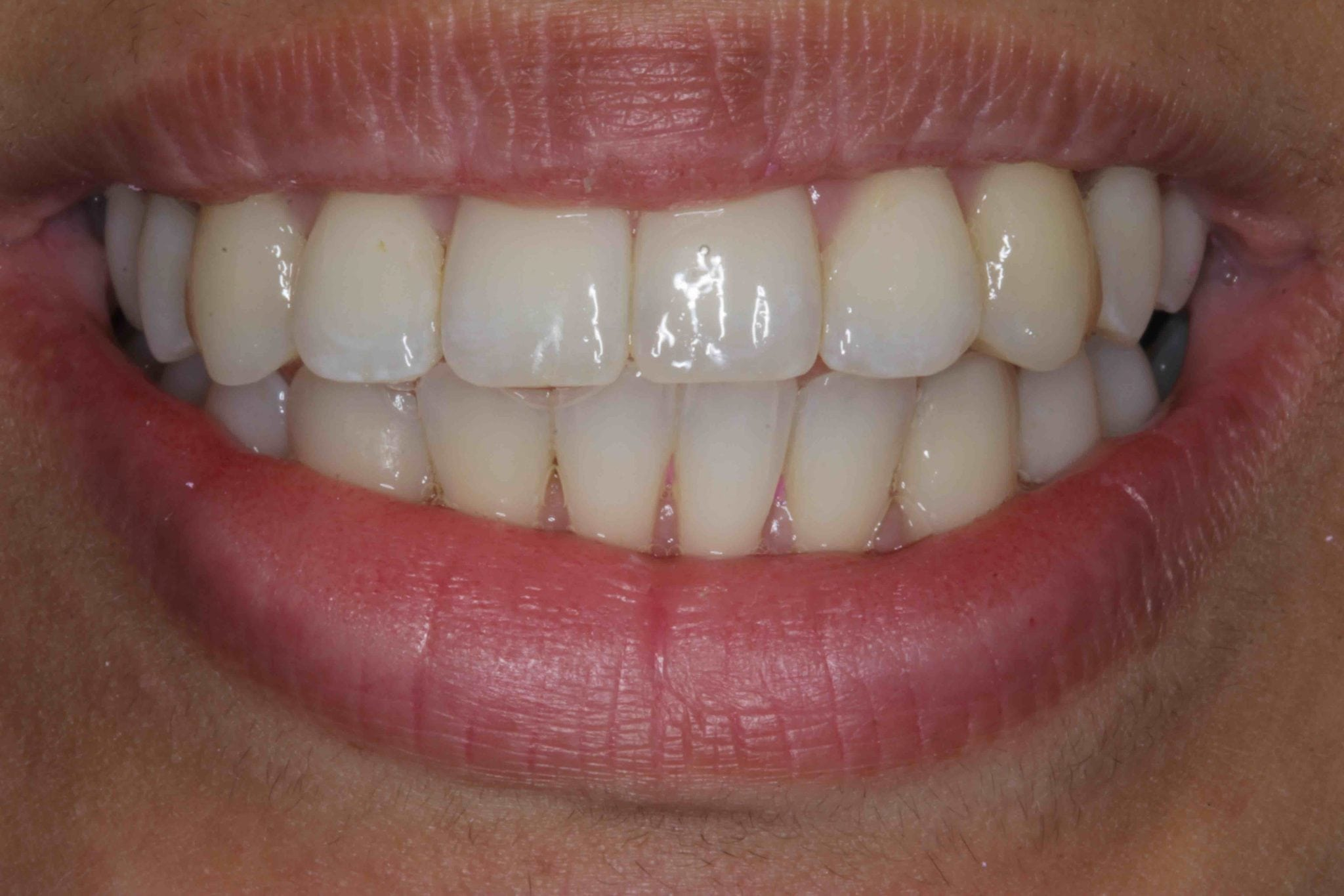 cosmetic teeth straightening with dental veneers after pictures