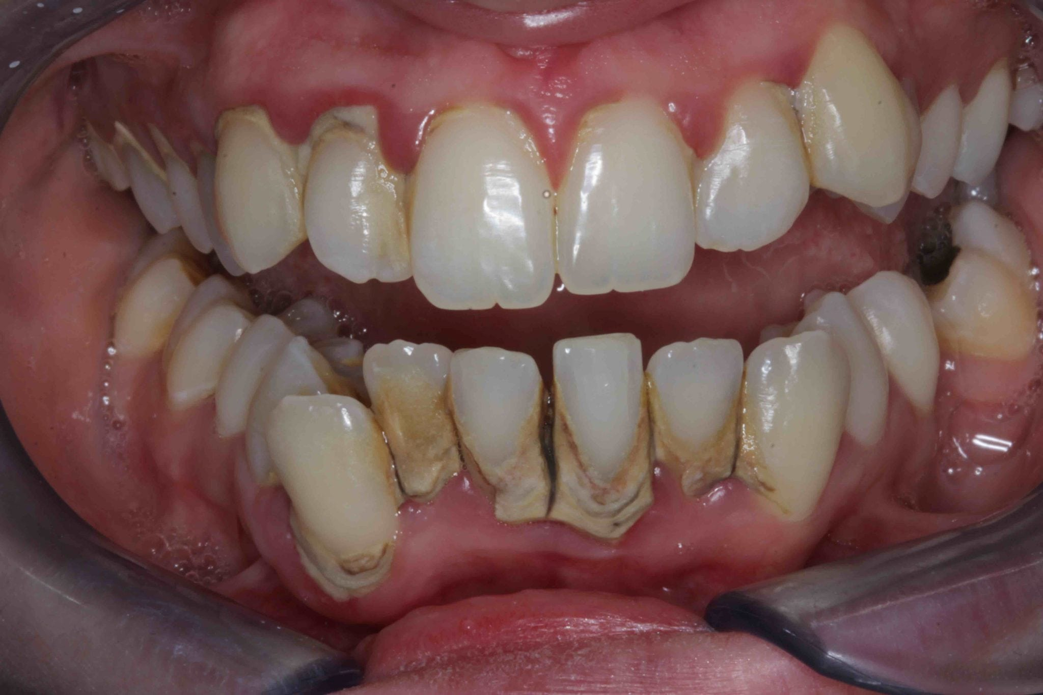 misaligned teeth treatment with porcelain veneers before photos