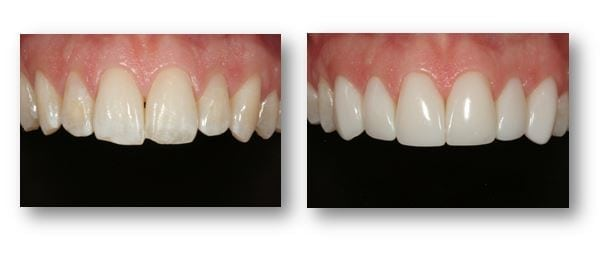 Direct Composite Veneers Before After Pictures