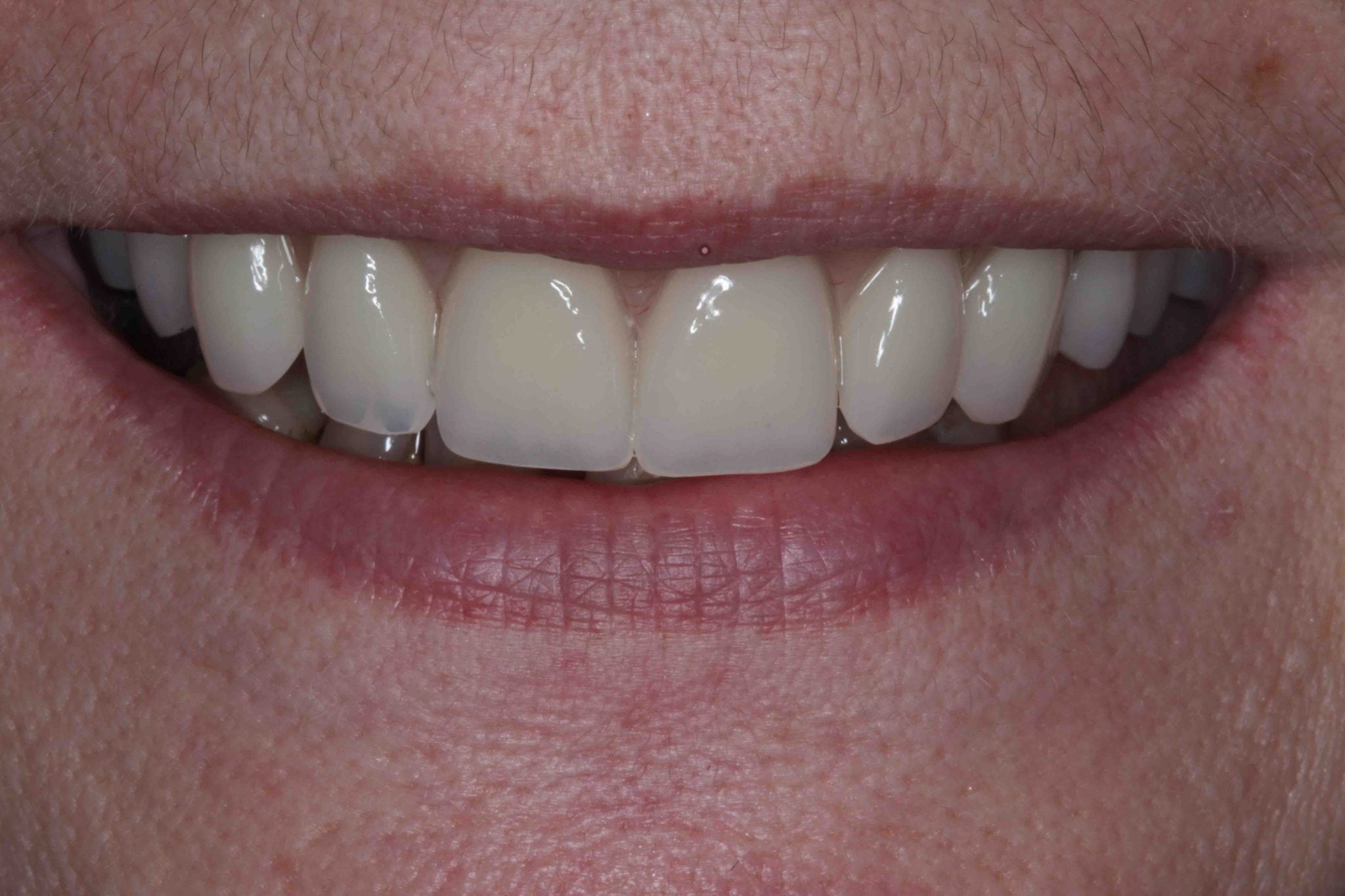 implant dentures after photo