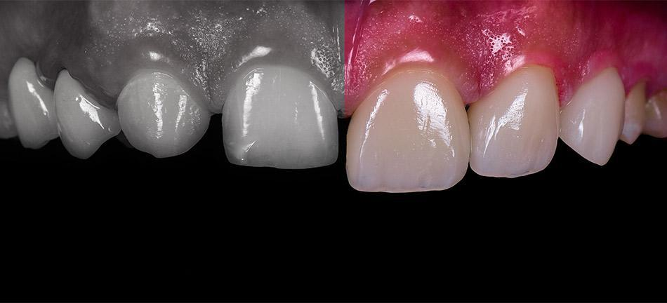 Dental Veneers before and After photos