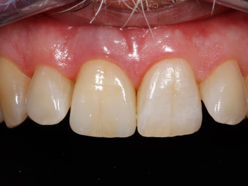Front Tooth After Dental implant photo