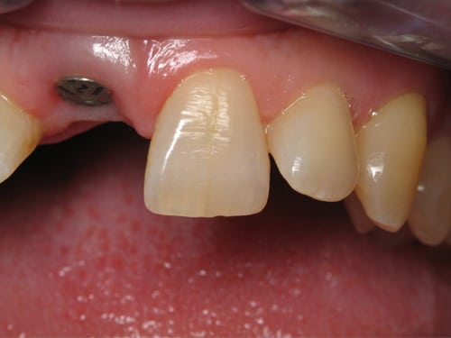 Front Tooth before Dental implant photo