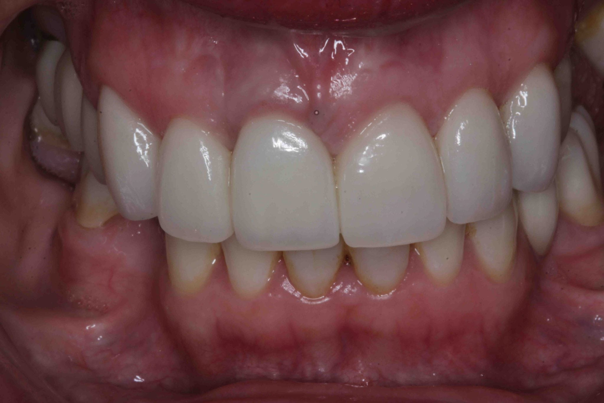 Front Tooth dental Implants before and After photos