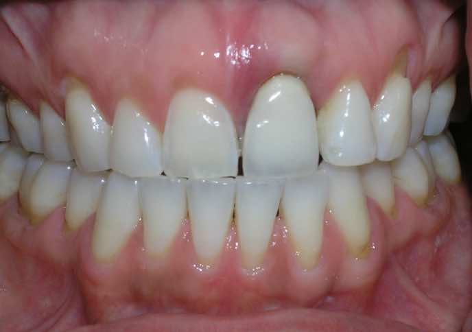 Front Tooth Dental Implants Before and After