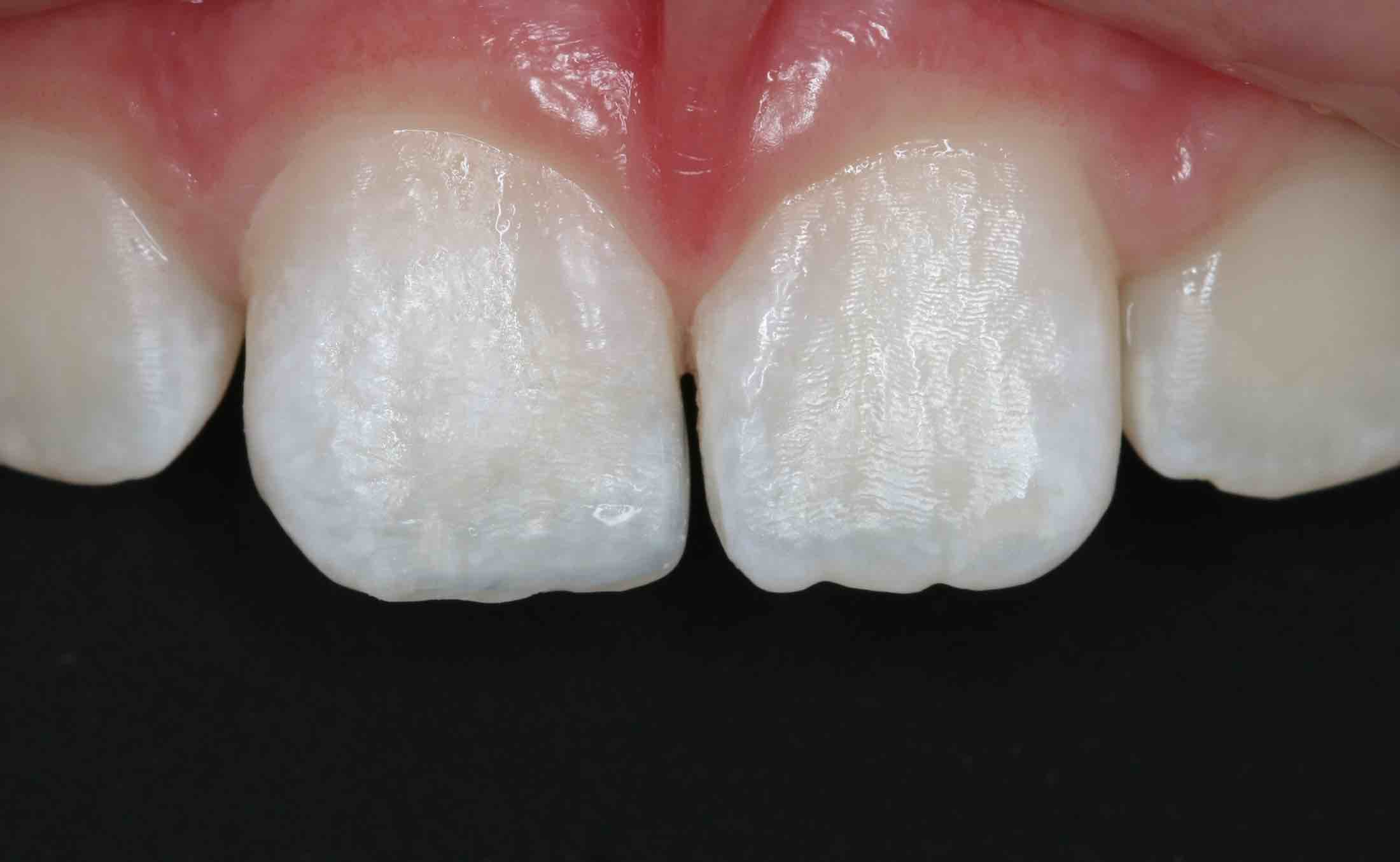 Before and After White Fillings in Front Teeth Picture