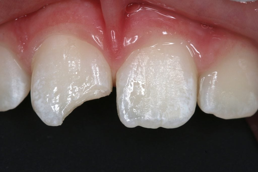 white filling before and after pictures