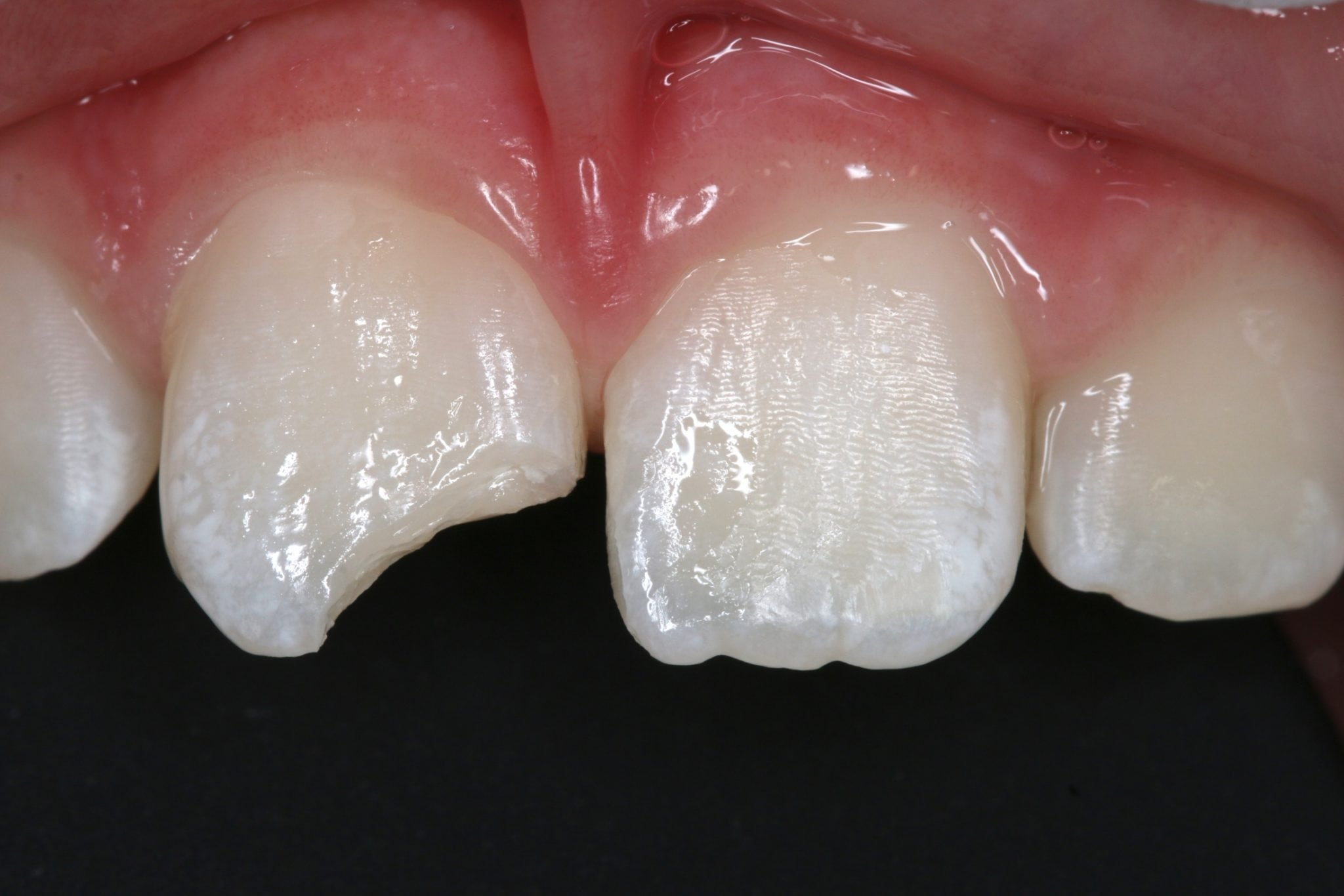 White Fillings Before and After Pictures
