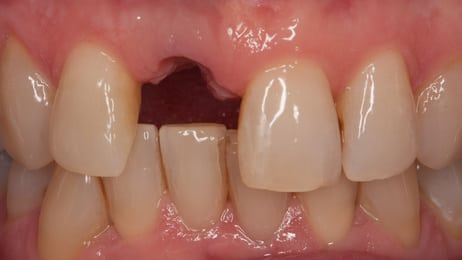 Missing Front Tooth Dental Implant Before Picture