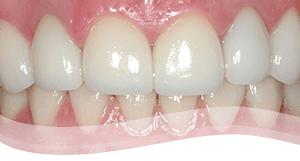 Tooth Veneers Process after - severely discoloured tooth treatment