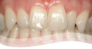 veneers procedure -before crooked teeth treatment