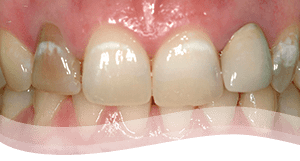 Tooth Veneers Process - severely discoloured tooth treatment