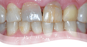 veneers procedure before - discoloured teeth