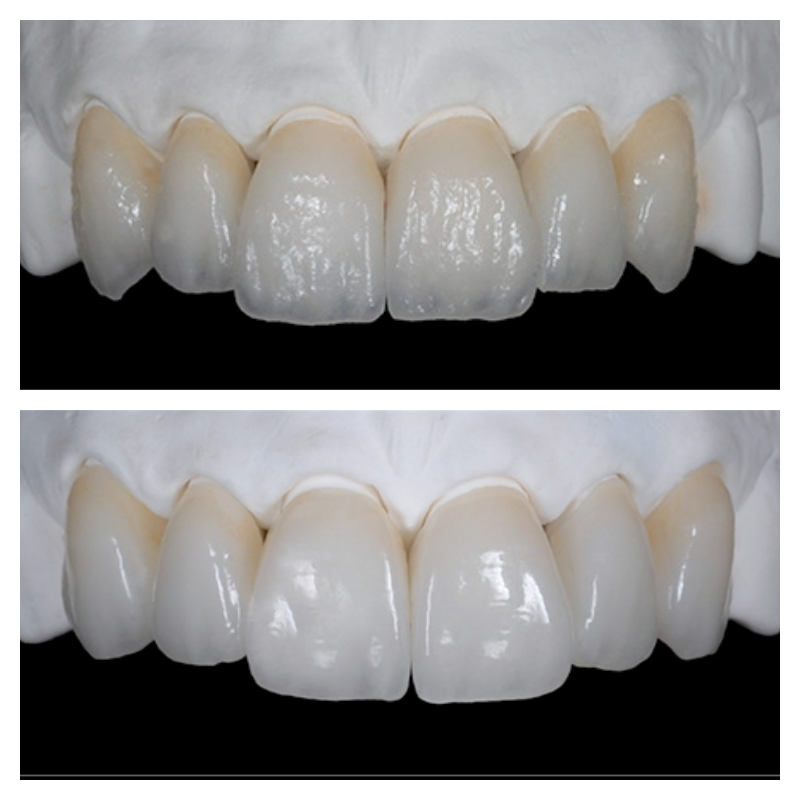 Veneers in Lancashire - Before After Pictures