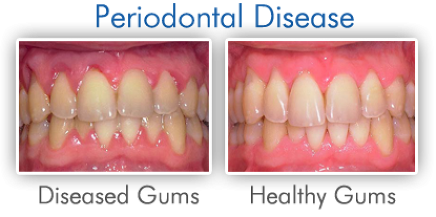 gum disease - bleeding gums before and after images