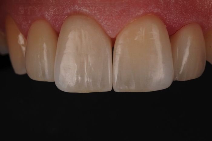 Veneers Lancashire - after treatment