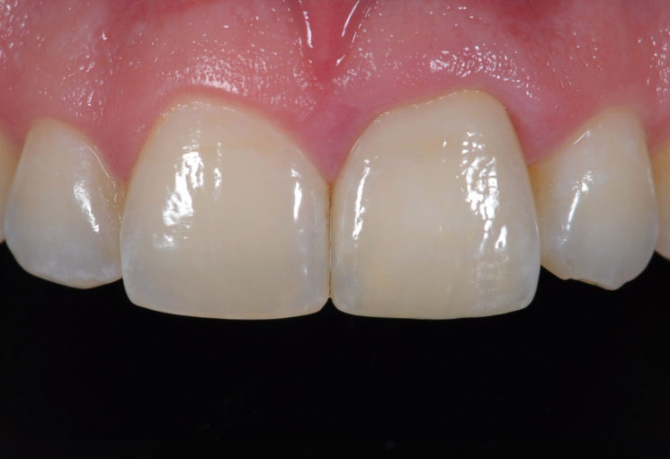 Cosmetic Dentistry Dental Crowns