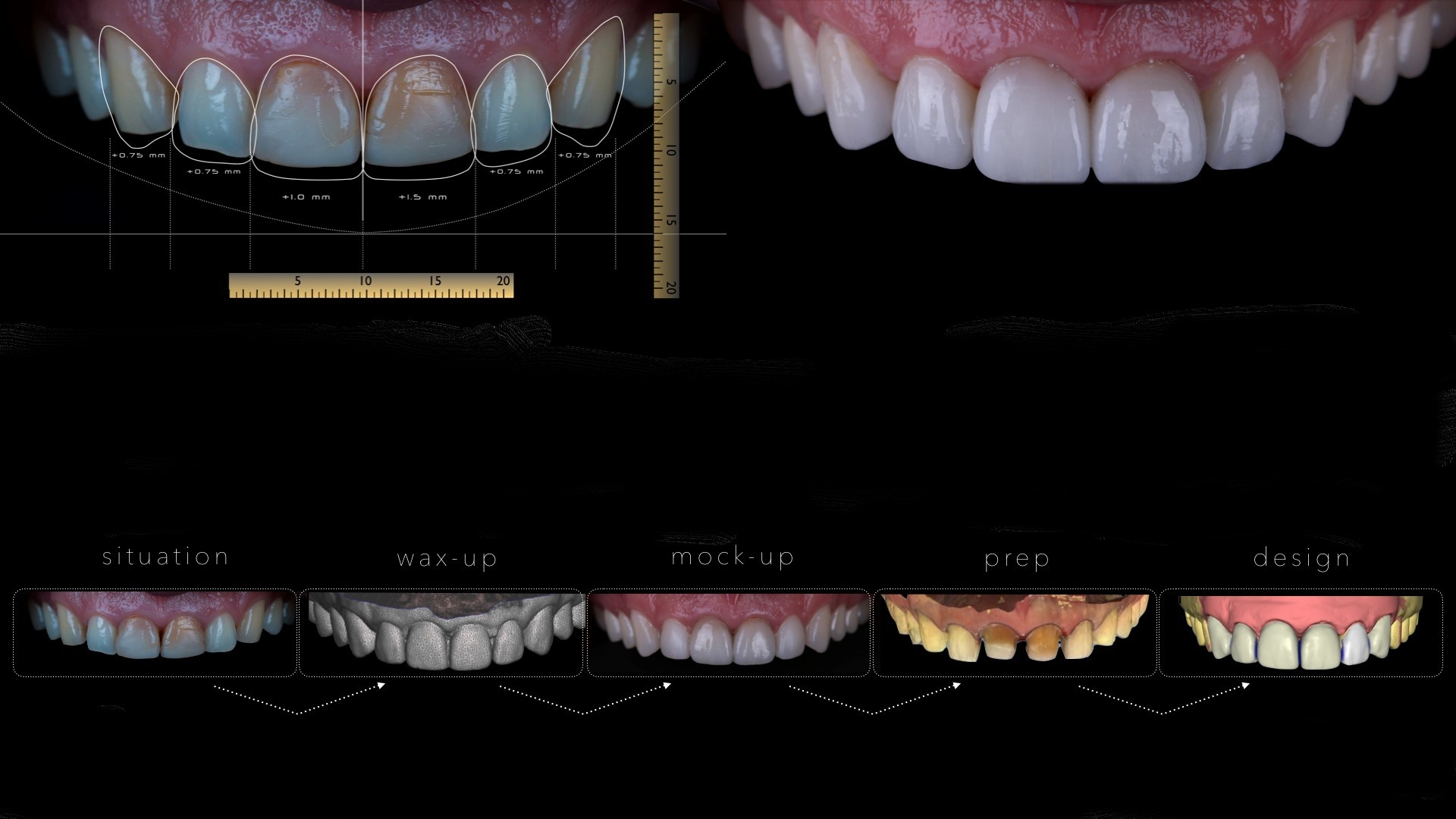 Cosmetic dental Porcelain Veneers