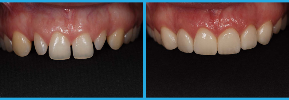 Tooth Veneers Before and After images