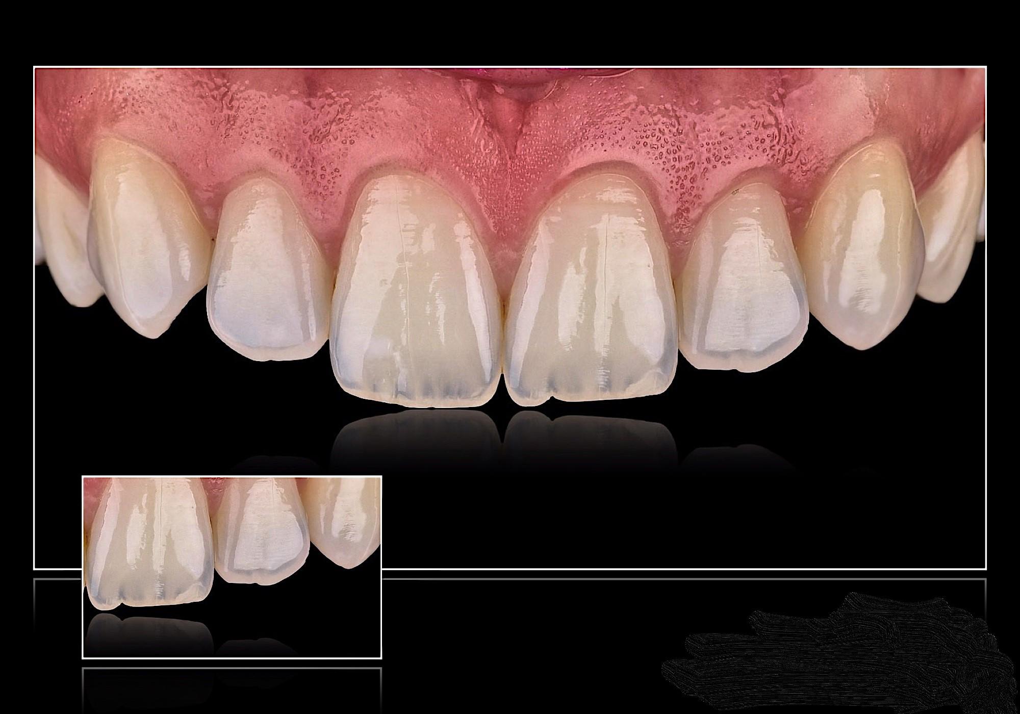Dental services at Preston No1 Dentist