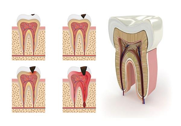 Endodontists in Preston , Lancashire