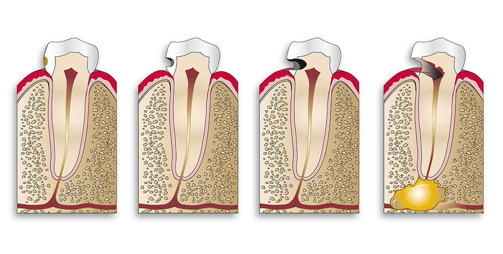 Root canal Specialist in Lancashire
